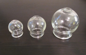 Cupping and moxibustion, image of Glass cups used in cupping therapy